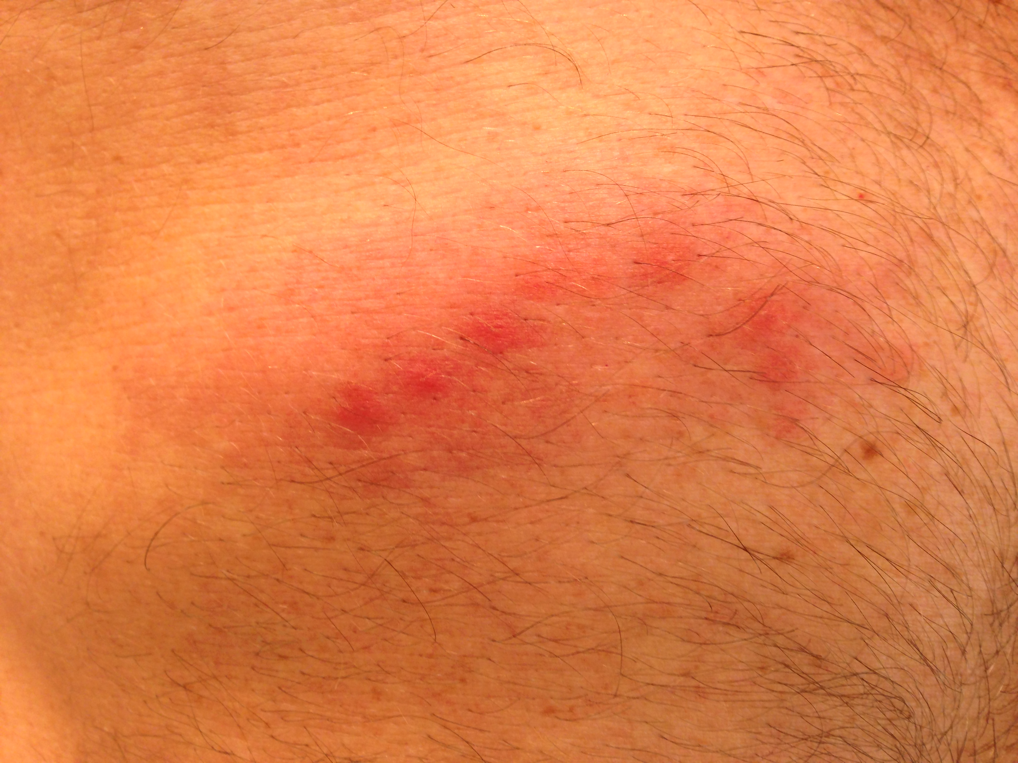 Shingles (Herpes Zoster) Rash - WebMD